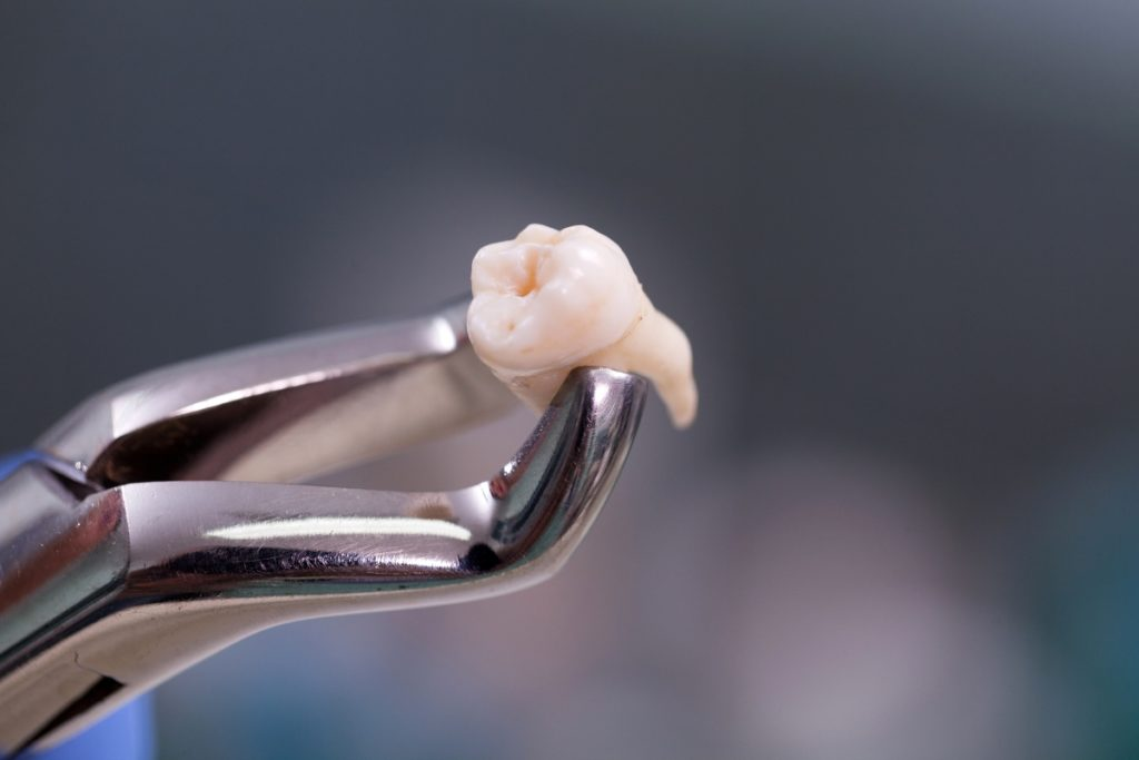 tooth on pliers